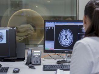 tecnologia tractament urgent ictus
