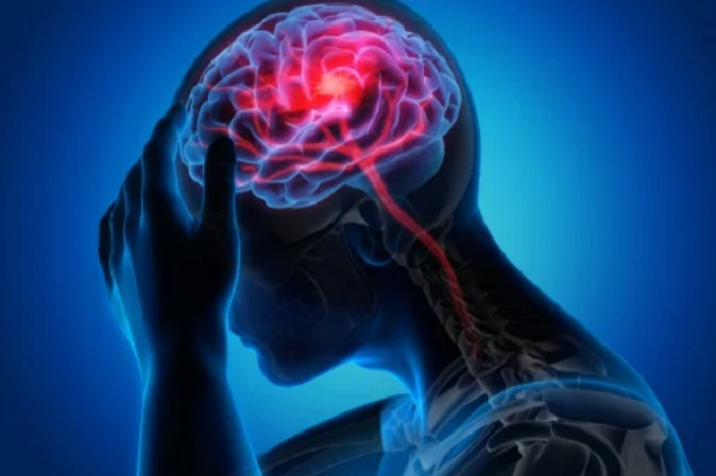 esclerosi múltiple secundaria progressiva